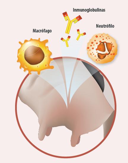 alteración en las mamas vacuno